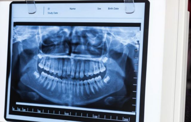 Wisdom Tooth X-Ray - Vallejo, CA