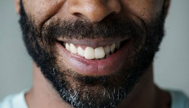 Closeup smiling mouth - Dental Implants Vallejo, CA